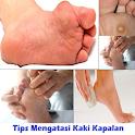 Tips to Overcome Foot Calluses icon