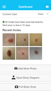 MySkinPal - Skin Cancer App- screenshot thumbnail