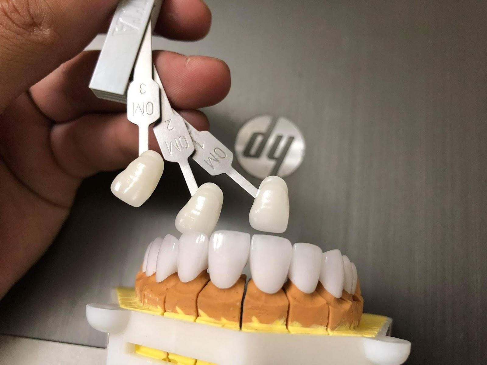 răng sứ cercon HT giá rẻ tại nha khoa catarina