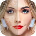 Blemishes Removal icon