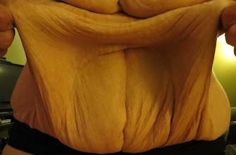 Photo: Extra stomach skin