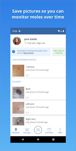 SkinVision screenshot 3