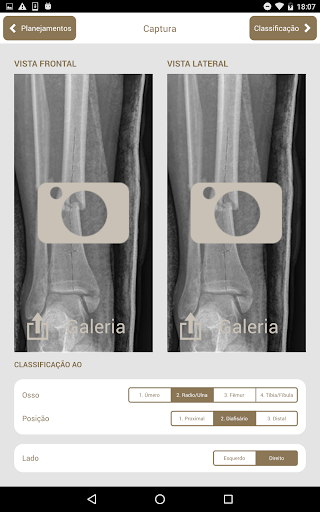 Osteotrauma screenshot for Android
