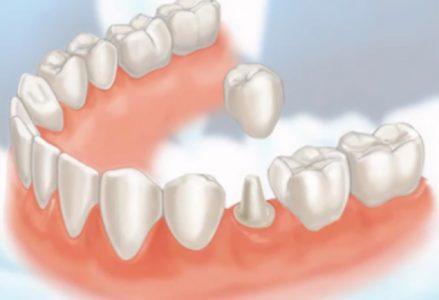Các loại răng sứ phổ biến hiện nay và ưu nhược điểm