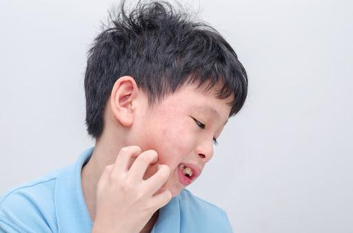 Phân biệt sốt phát ban ở trẻ và sốt xuất huyết