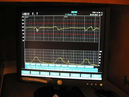 Bay Area Regional Medical Center Webster Texas Medical Malpractice