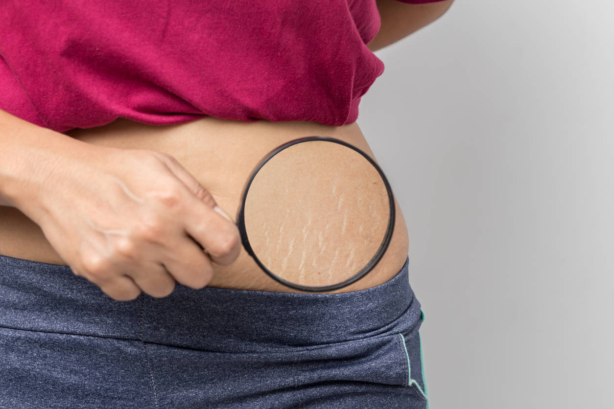 get rid of stretch marks in 2021