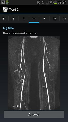 Radiological Anatomy For Frcr1 Apk Download Apkpure