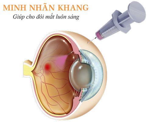 Thuốc kháng VEGF được tiêm trực tiếp vào mắt để điều trị võng mạc tiểu đường