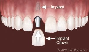Dental Implants Replace One Tooth.