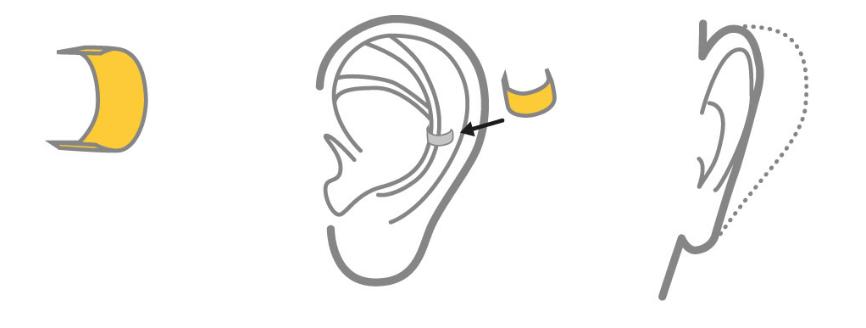funzionamento earfold