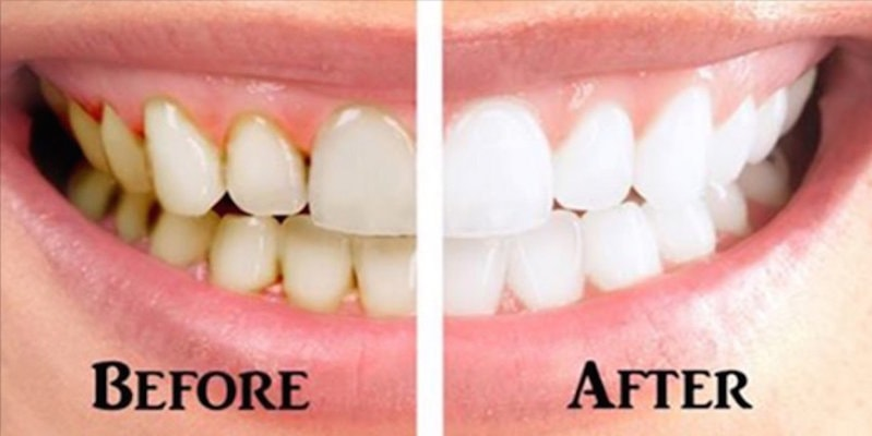 Whiten your teeth with these home remedies