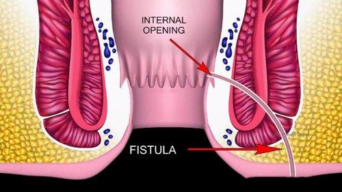 DISCHARGE INSTRUCTIONS FOLLOWING FISTULOTOMY