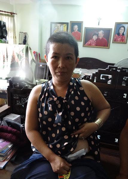 Chị Thủy và vết mổ cắt bỏ khối u trực tràng