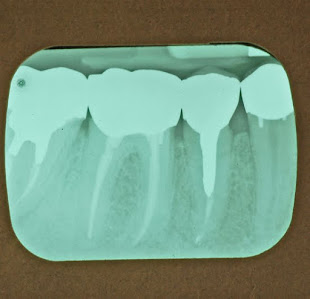 an x-ray of a patients teeth for a root canal