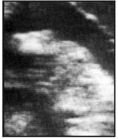 Día 62: concepto con feto de búfala totalmente distinguible, con cabeza, área óptica, miembros anteriores y posteriores.