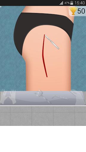 股関節手術ゲーム