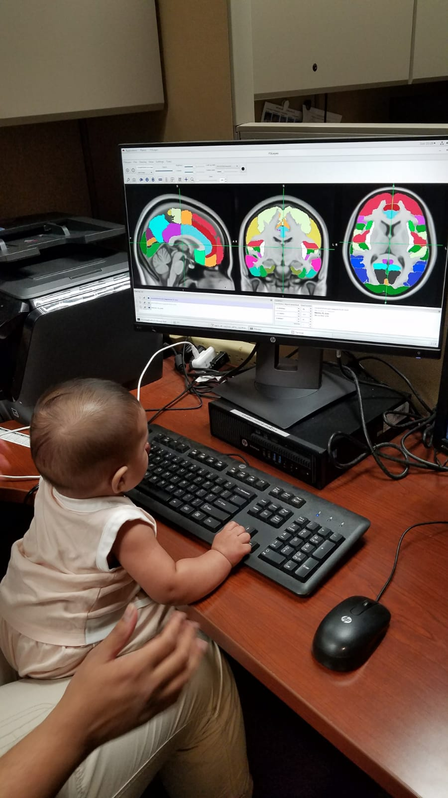 Sindhuja's child is pressing on the computer keys while staring at colorful images of brain scans.