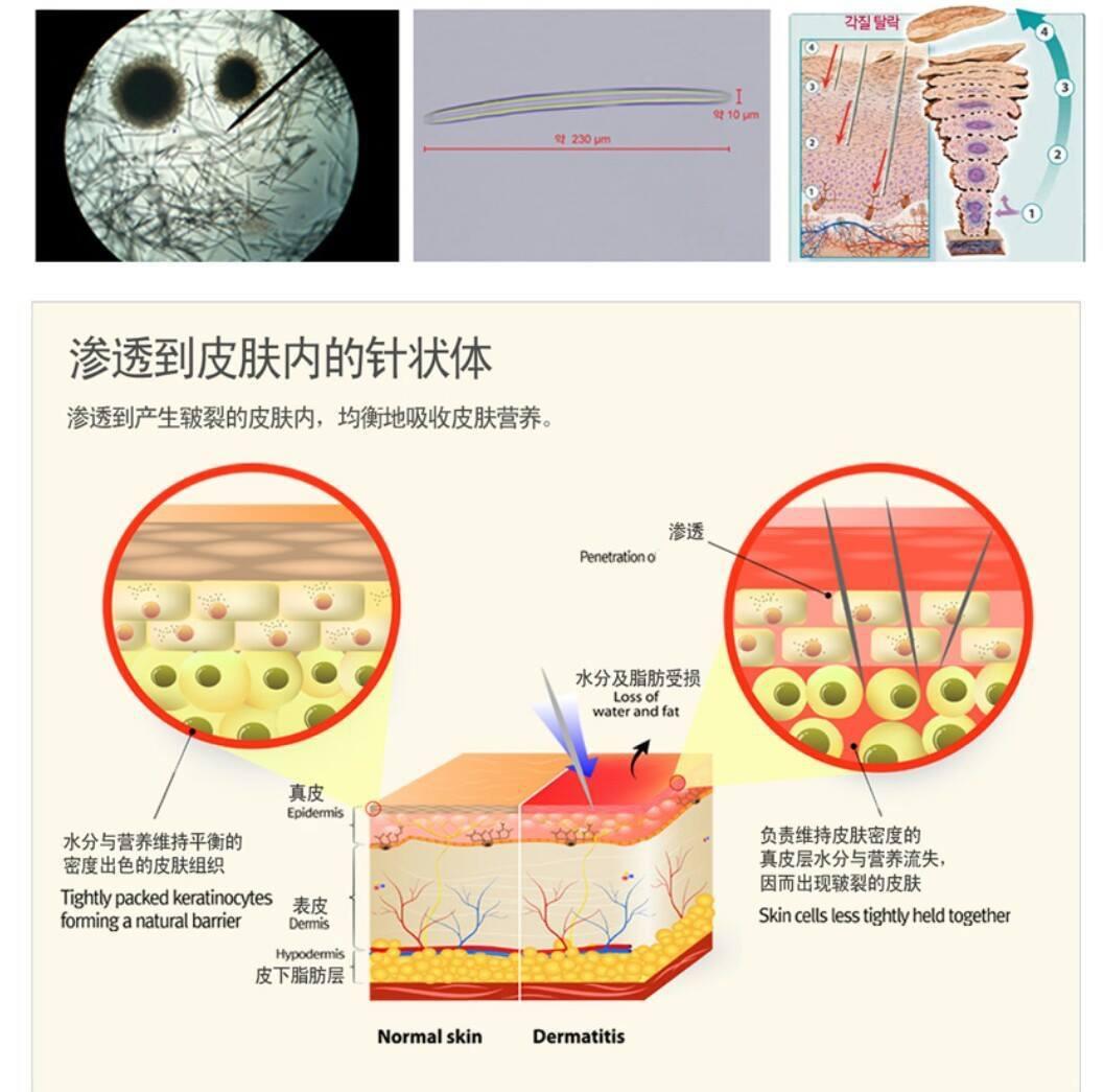 Cơ chế hoạt động của vi kim tế bào gốc tốt không so với lăn kim?