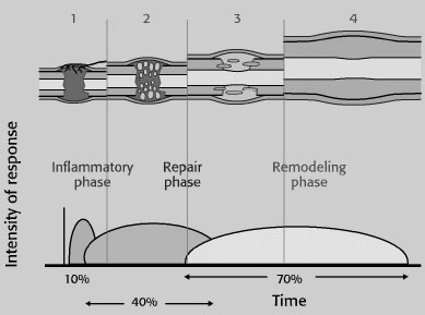 Phases of secondary bone healing