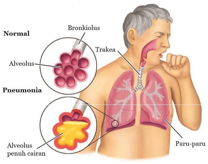 penderita pneumonia