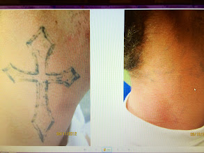 Photo: Side by Side Images of Neck Laser Tattoo Removal treatments at Las Vegas Dermatology using the RevLite SI. It Typically takes between 10-13 Treatments for complete Laser Tattoo Removal.