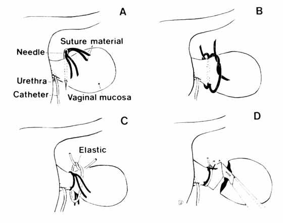 Amputación de un pliegue vaginal prolapsado con forma de pera. A: Se atraviesa la base de la mucosa edematizada con una aguja y dos hebras de sutura, B: Se liga cada sutura independientemente, C: En el surco formado por las ligaduras, se coloca una banda elástica que se ajusta fuertemente y asegura mediante una sutura D: Se amputa la mucosa vaginal sobrante [De 8].