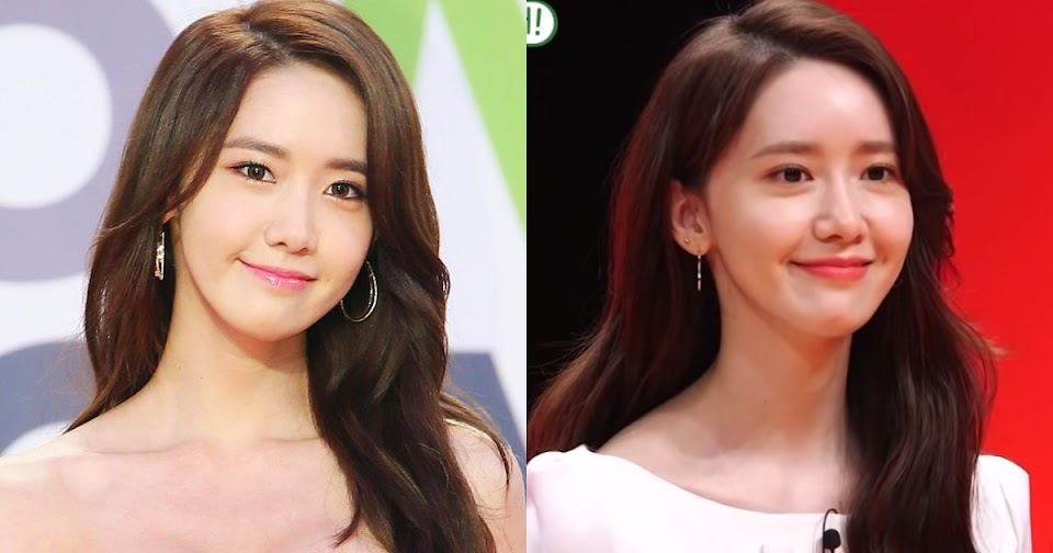 yoona plastic surgery rumors