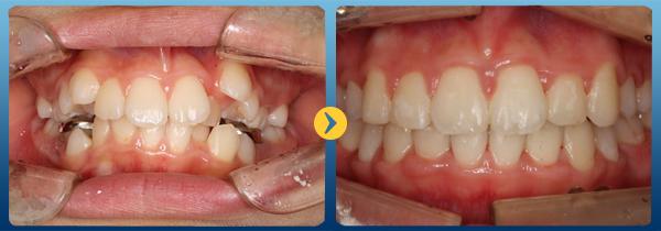 Niềng răng có hại không - có ảnh hưởng gì không? 1