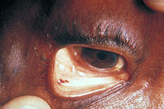 Photo: Conjunctival hemorrhages in bacterial endocarditis