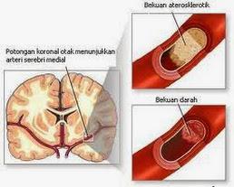 Obat Alternatif Penyembuhan Sindroma Darah Kental