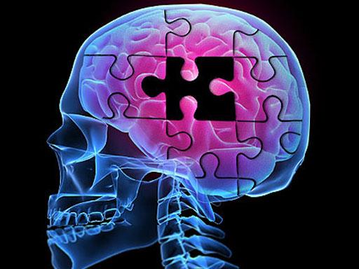 alzhemiers