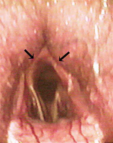 In addition to dynamic collapse of the left arytenoid cartilage and axial deviation of both vocal cords during treadmill exercise, this horse also showed significant bilateral nasopharyngeal collapse (arrows).
