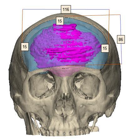 Imagen que contiene mamífero, primate, pastel, cara  Descripción generada automáticamente