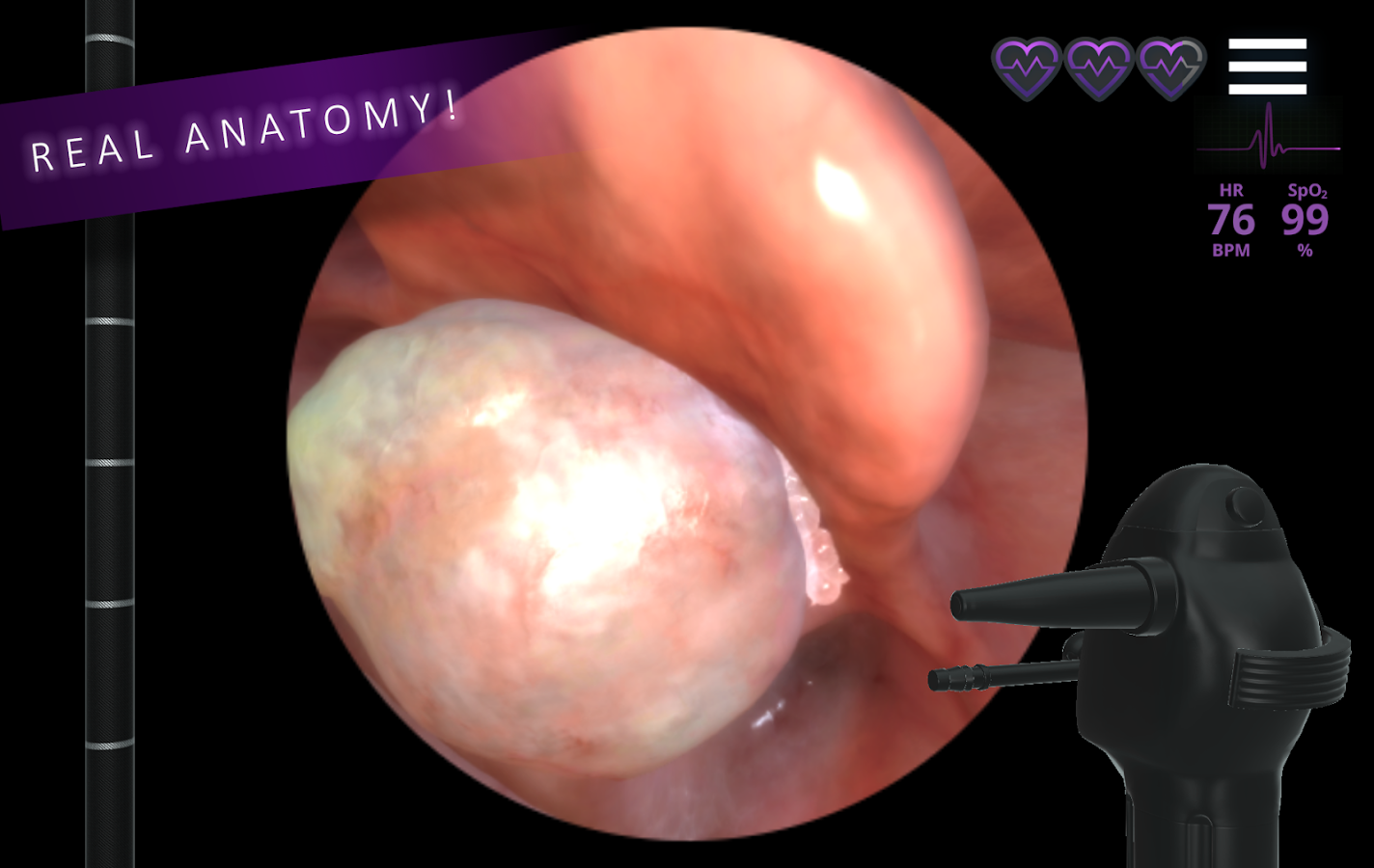 Airway EX Virtual Surgery- screenshot