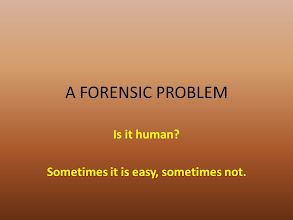 Photo: This is typically the very first question when it comes to forensic anthropology (anthropology working with a law enforcement goal).