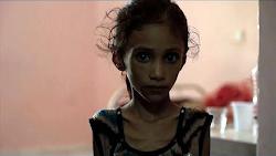 El hambre como arma de guerra en el Yemen (Oct 2018)