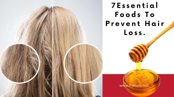Foods To Prevent Hair Loss.