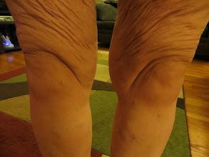 Photo: Knees