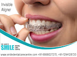 Best Invisible Aligner Treatment Where Can I Get in Faridabad?
