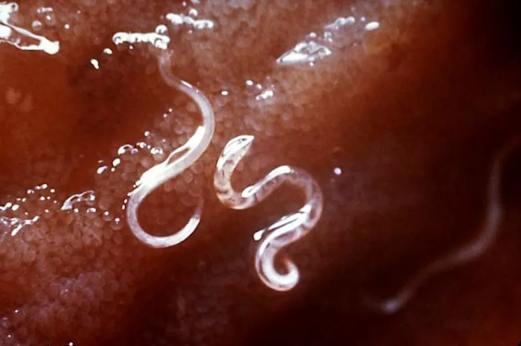 Warning Signs That Your Body Is Already Plagued By Parasites