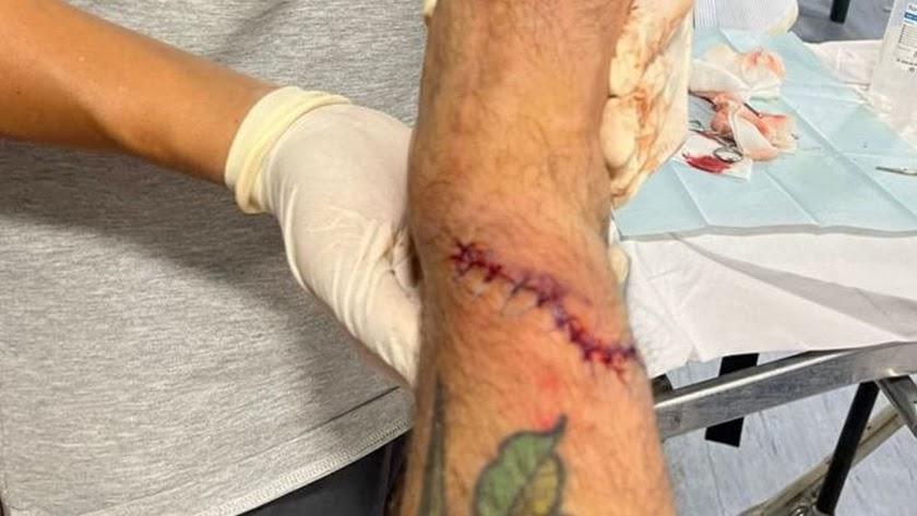 Así está la pierna derecha del ex-jugador del Almería.
