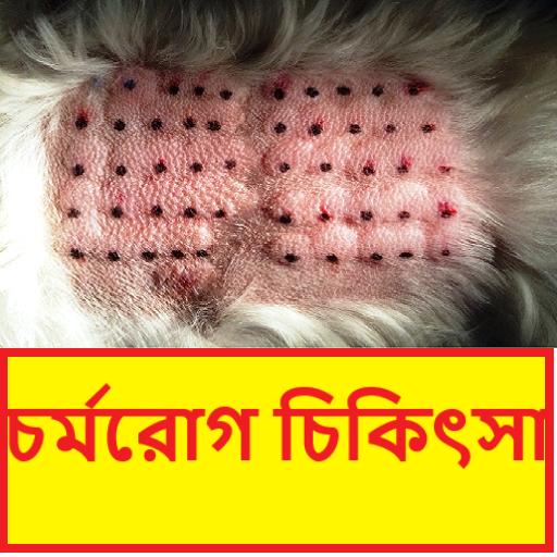 চর্মরোগ   Dermatitis