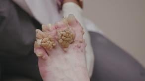 Hornet's Nest Feet thumbnail