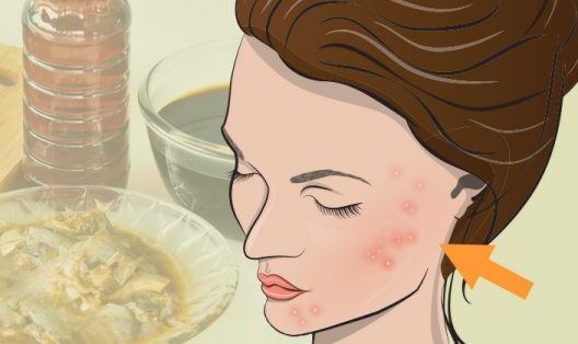 Why Too Much of This Vitamin Could Be Ruining Your Skin