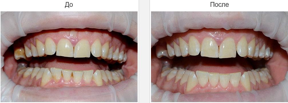 air flow для зубов
