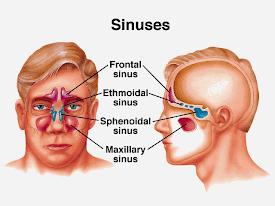 Laminine Suplemen Sehat Untuk  Penderita Sinusitis