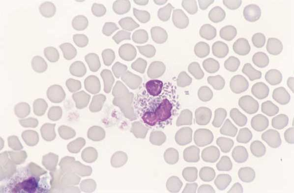 Feline eosinophils. The cell membrane has ruptured in smear preparation and the rod-shaped granules are clearly visible (100x).