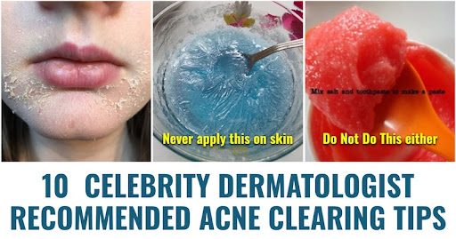 10 Celebrity Dermatologist Recommended Acne Clearing Tips