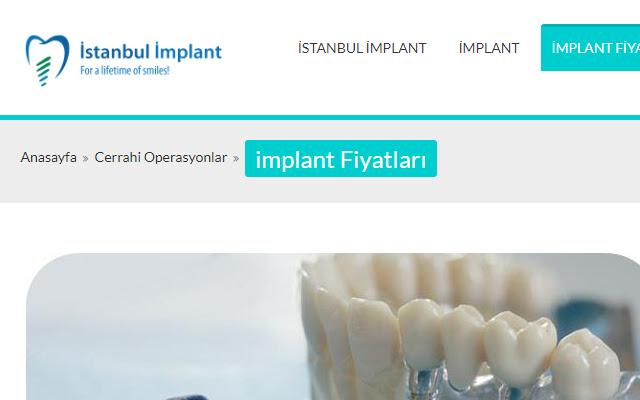 implantdental